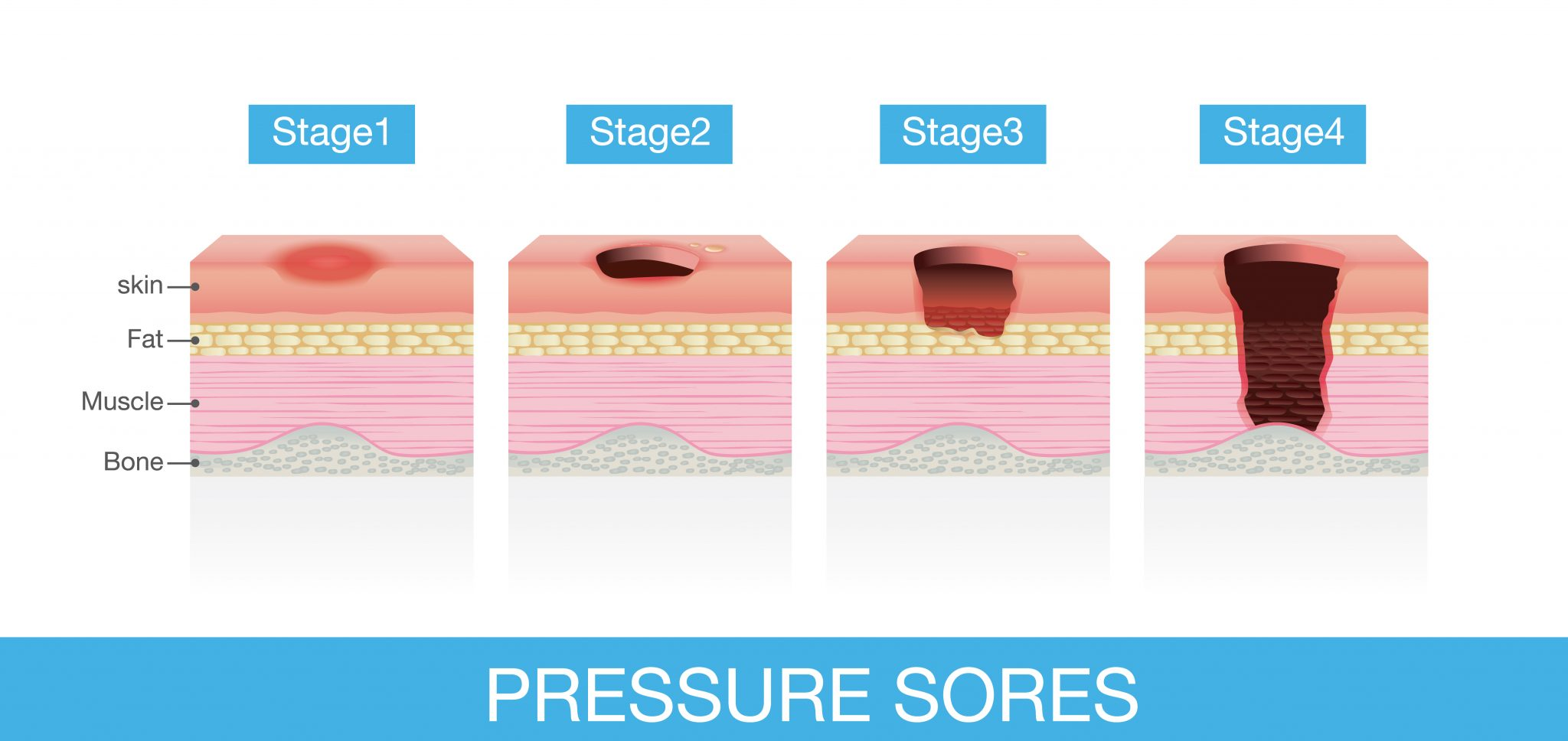 Management of Pressure Ulcers